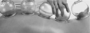 Myofascial Cupping B&W